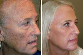 before and after reset for sun damage procedure adam scheiner md