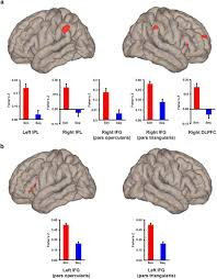 effects of early and late bilingualism on resting state functional