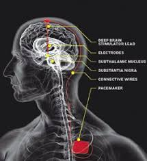 The National Hospital For Neurology And Neurosurgery Queen Square Deep Brain Stimulation Lecture