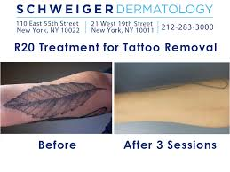 new tattoo removal techniques get rid of unwanted ink in record time