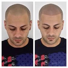 pics of scalp micropigmentation on people with long hair before after smp hairloss treatment with skalp uk see more at