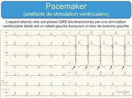 pacemaker chambre formation à l de a à z par taboulet
