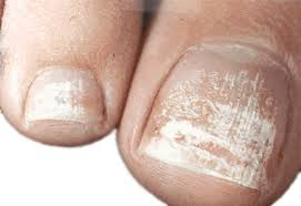 causes and treatments for white spots on toenails new health advisor