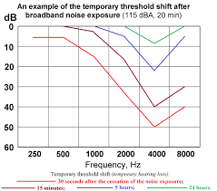 Temporary File Temporary Threshold Shift Hearing Loss After Noise Exposure