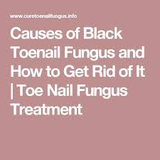 best 25 black toenail fungus ideas on pinterest toenail fungus