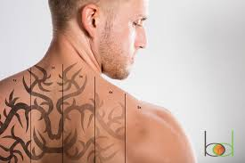 how growing technology is improving tattoo removal body details blog