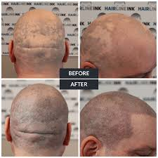 what is scalp micropigmentation smp explained hairline ink