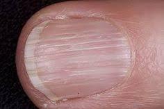 nail disorders med health net