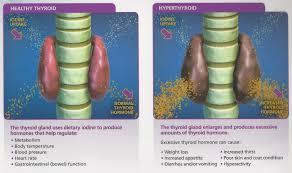 what is hyperthyroidism hair transplant mentor