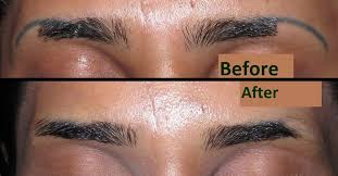 tattoo eyebrows lancashire laser tattoo removal bolton shattered ink bolton lancashire