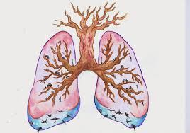 Anatomy And Physiology Of Copd What Is The Pathophysiology Of Copd Hello Doktor