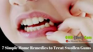 7 simple home remedies to treat swollen gums youtube
