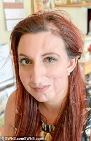 hairstyle to avoid sunken face yasmin butler whose face sunk says she finally sees beauty in the