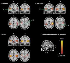 Gross Anatomy Of The Brain And Cranial Nerves Pdf The Relation Between Perception And Brain Activity In Gaze Evoked
