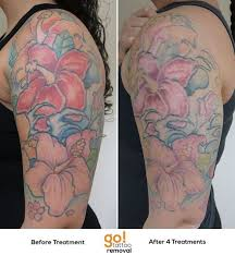 tattoo removal shoulder 909 best tattoo removal in progress images on pinterest
