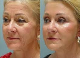 does infrared light therapy work 43 best red light therapy before and after images on pinterest red