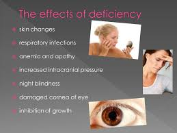 Night Blindness Deficiency Vitamin A Is Known As Retinol And Occurs Only In Animal Products