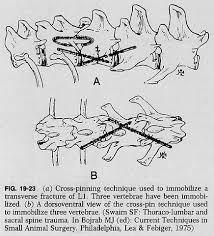 Anatomy Of Vertebral Body 19f23 Jpg