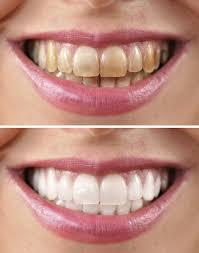 Dentist That Do Teeth Whitening Teeth Whitening Utah Dental Service Young Family Dental