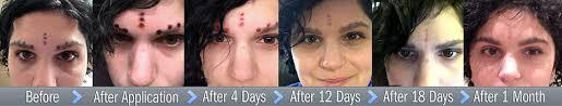 tattoo removal cream reviews evanesco cream