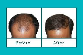 Injection In Scalp For Hair Growth Platelet Rich Plasma Therapy For Hair Loss U2013 Explained By Dr