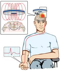 transcranial magnetic stimulation and amyotrophic lateral