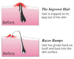 do ingrown hair hurt how to prevent ingrown hairs after waxing and epilating hair