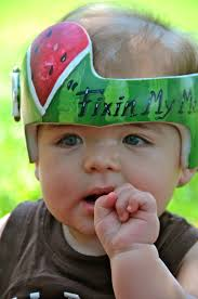 band baby melon cranial band helmet doc band https www pages