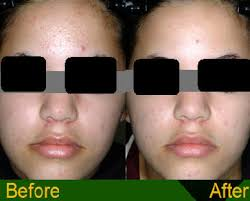 blu light therapy for acne acne treatment
