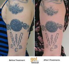 tataway tattoo removal center of boston welcome to our office