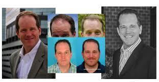 transplant hair second round draft celebrity hair transplant bust hair insider an insider s guide