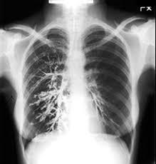 Radiology Of Thorax Thorax Radiologic Anatomy