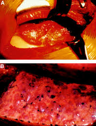 cuisine uip schmidt lymphangioleiomyomatosis clinical features management and basic