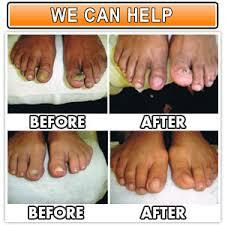 nail fungus treatment nail salon in tucson nail salon 85716