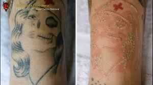 saline tattoo removal u2013 everything you need to learn about tattoo