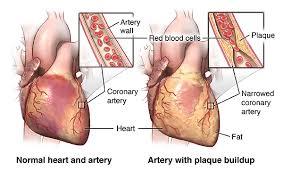 Heart Anatomy Arteries Coronary Artery Bypass Graft Surgery Johns Hopkins Medicine