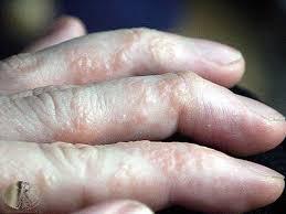 itchy bumps on hands that spread treat dyshidrotic eczema julianne s paleo zone nutrition