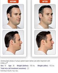 how to make a double chin look less noticable eith hair kybella double chin eliminator skin perfection aesthetics lasers