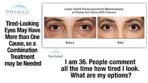 Fascinating Meaning Bags Fascinating Tired Looking Eyes Have Different Causes And