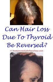 hair growth supplements for women revita locks the 25 best shoo for hair loss ideas on pinterest hair