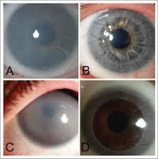 Lasik Long Island Cataract Surgery Cornea Transplantation You U0027ve Got Options Part 2 Sightmd