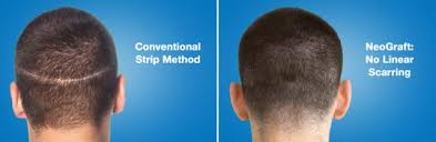 neograft recovery timeline incisionless hair restoration melbourne fl