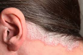 light treatment for scalp psoriasis update on topical approaches for managing scalp psoriasis
