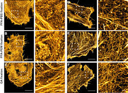 pfa fixation enables artifact free super resolution imaging of the