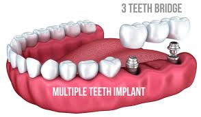 Bridge Dental Cost Estimate by Dental Implant Cost Consumer Information Clear Prices