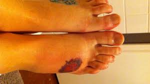 tattoo bacterial infection treatment tattoo infection symptoms and treatment