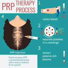 how is platelet rich plasma used to treat hair loss