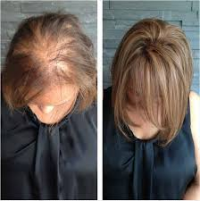 hair weaves for thinning hair thinning hair solutions garnish hair studio extension bar