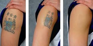 how much does laser tattoo removal cost in singapore
