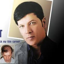 ranbir kapoor hair transplant celebrity hair transplant top hair transplant center delhi